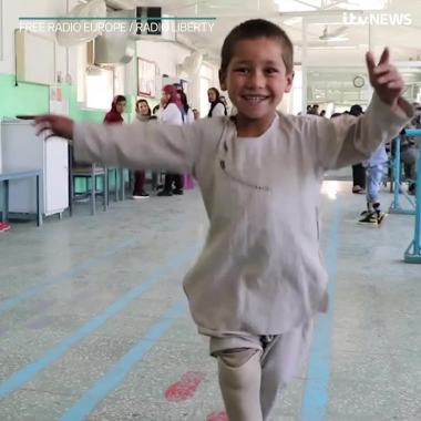 Dance Umbrella news:  Afghan boy who lost leg in gunfire as a baby dances on new prosthetic limb